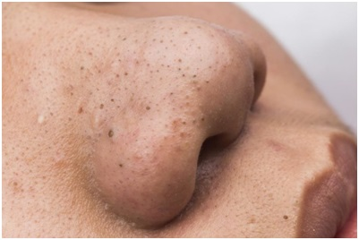 Лечение кожи лица - угрей в Махачкале