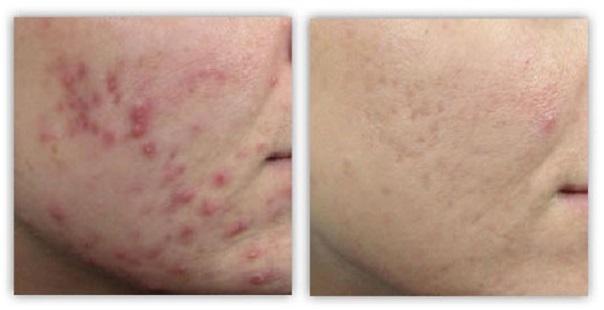 косметологическое лечение проблемной кожи лица