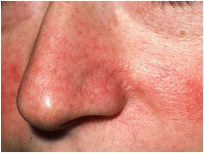 Лечение купероза в Махачкале