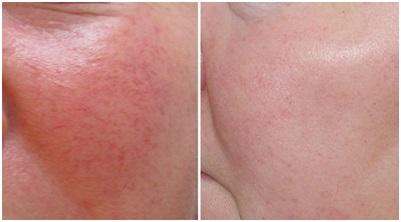 Лечение купероза в косметологии в Махачкале