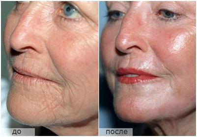 Комплексное омоложение кожи лица и тела