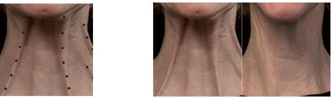 Инъекции ботулинотерапии в Махачкале: шея