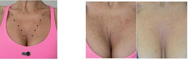 Ботулинотерапии в косметологии в Махачкале (декольте)