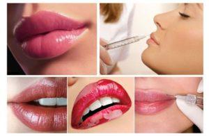 Увеличить губы гиалуроновой кислотой в Махачкале