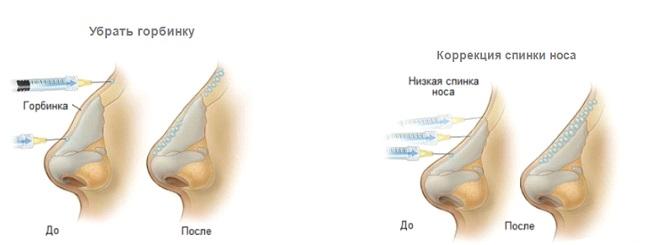 Безоперационная ринопластика носа в Махачкале
