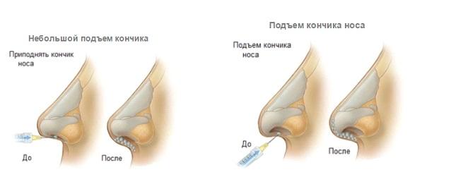 Безоперационная ринопластика в клинике