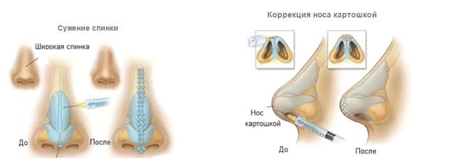 Безоперационная коррекция формы носа в клинике