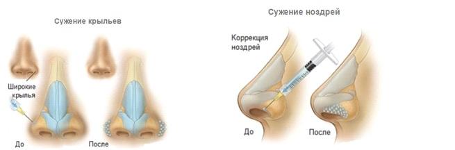 Услуга безоперационной пластики носа